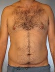 Abdominal Etching in Houston, TX