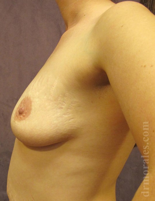 Side View - Breasts Before