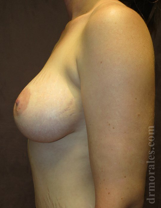 Side View - Breasts After