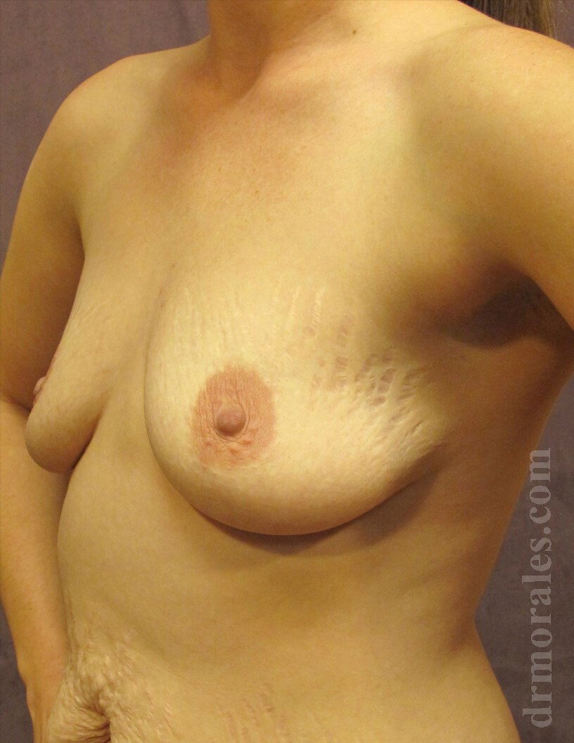 3/4 View - Breasts Before