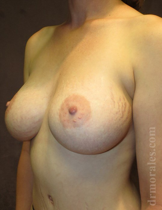 3/4 View - Breasts After