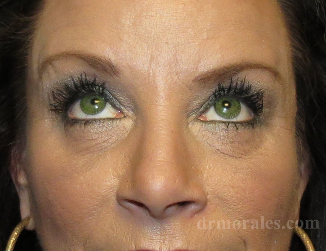 Lower Blepharoplasty After